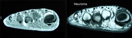 neuroma01